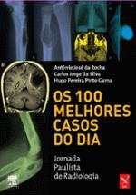 100 MELHORES CASOS DO DIA, OS